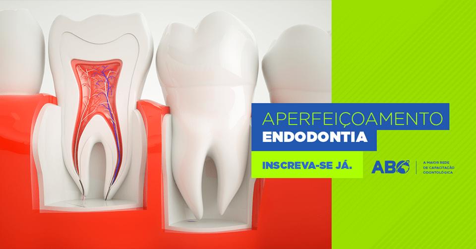 Aperfeiçoamento em Endodontia
