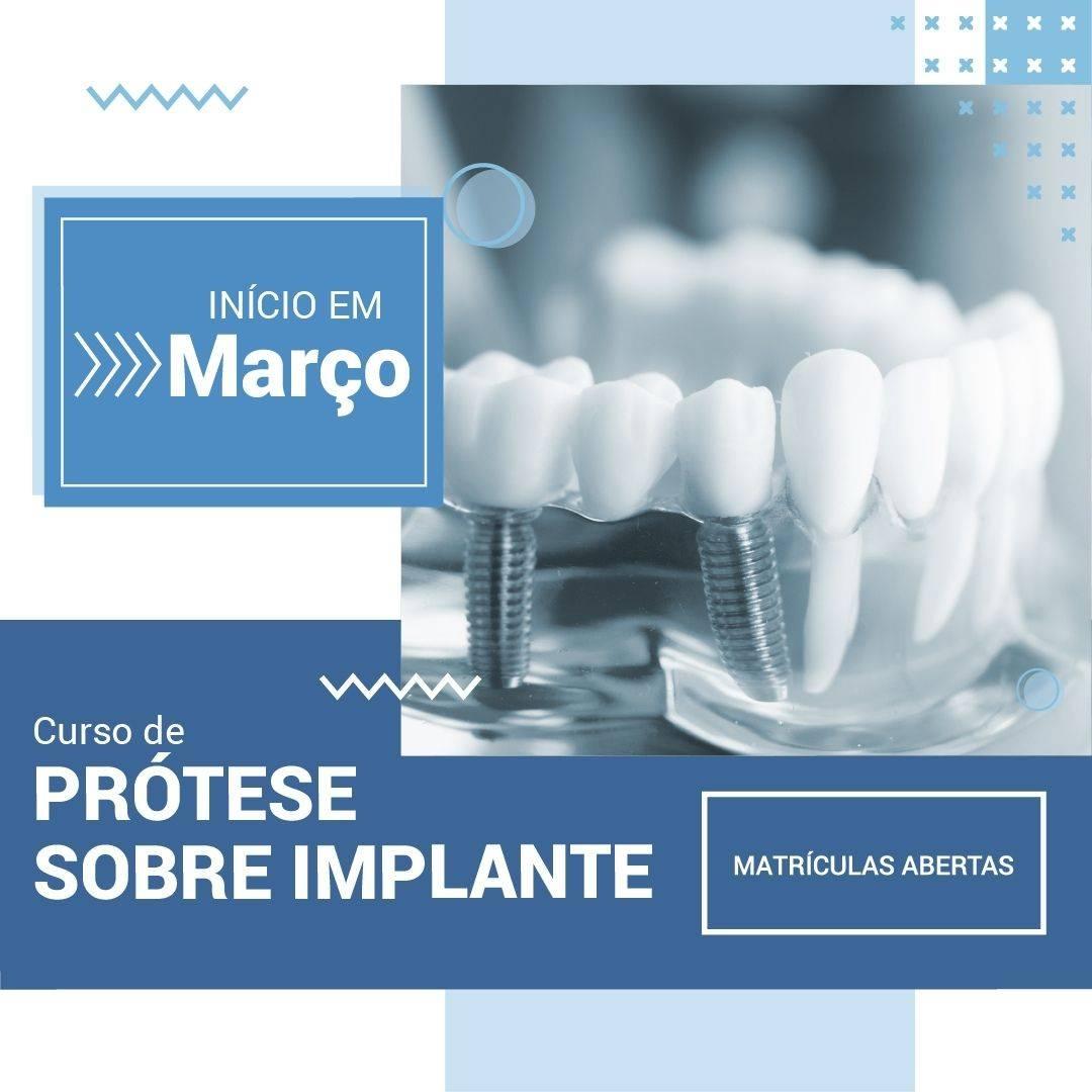 Imersão em Prótese Sobre Implante